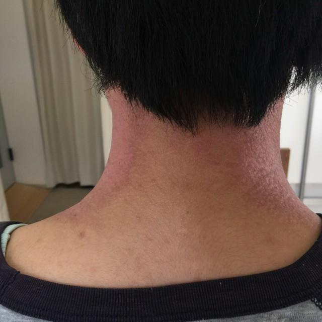 整体で良くなる首の湿疹