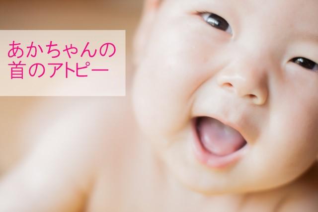 赤ちゃんの首のアトピー