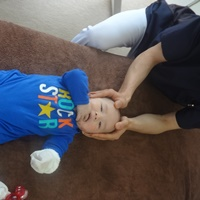 乳幼児頭蓋骨の調整