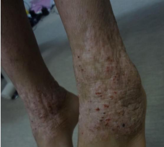 皮膚の変形