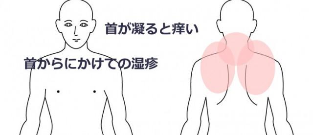 仕事乳に痒くなる首のかゆみ 30代 男性