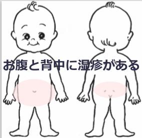 お腹と背中の湿疹