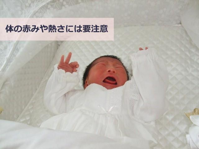 アトピー赤ちゃんは体の熱きや赤さには気をつける