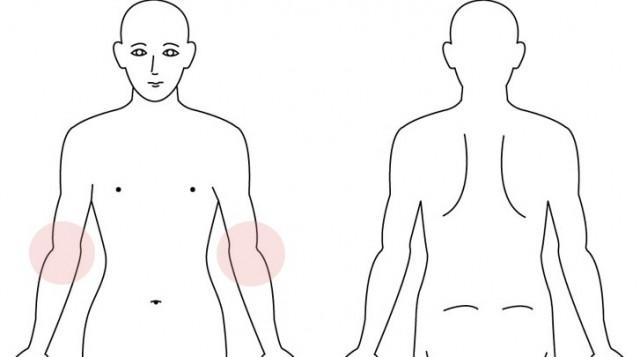 両肘のかゆみ