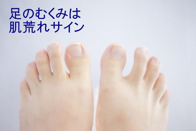 足のむくみは肌荒れサイン