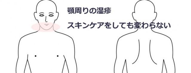 顎周りの湿疹