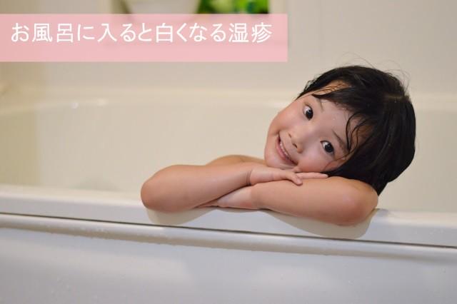 お風呂に入ると白くなる湿疹
