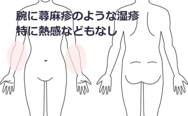 症例7 腕の蕁麻疹のような湿疹 30代 女性 横浜市