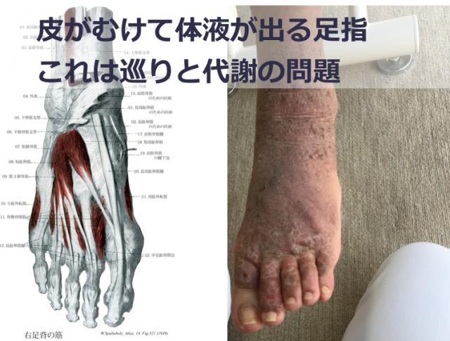 指の皮がむけて体液が出る湿疹