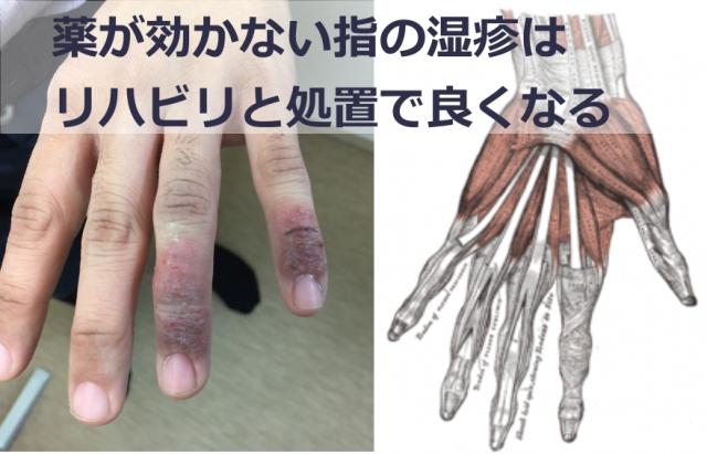 薬も効かない指の湿疹