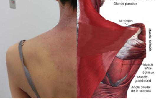 肩甲骨周囲の湿疹