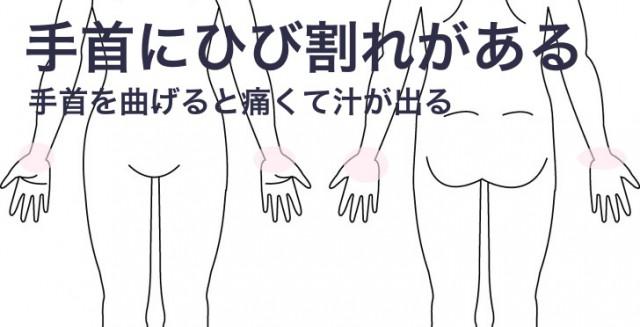 手首のひび割れ
