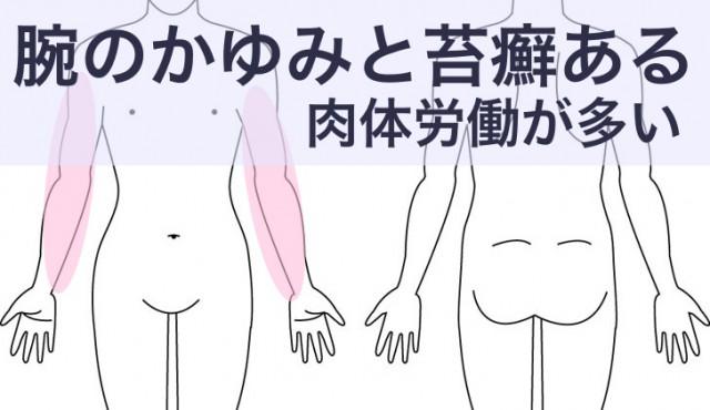 肉体労働と腕の苔癬