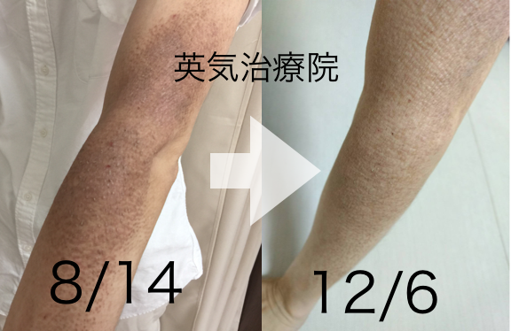 苔癬の改善例