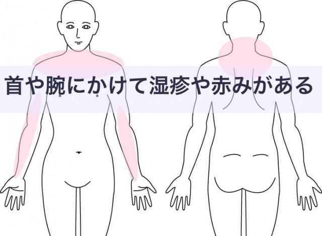 首や肩の湿疹