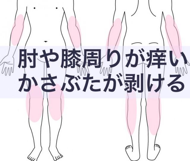 肘や膝がかゆい