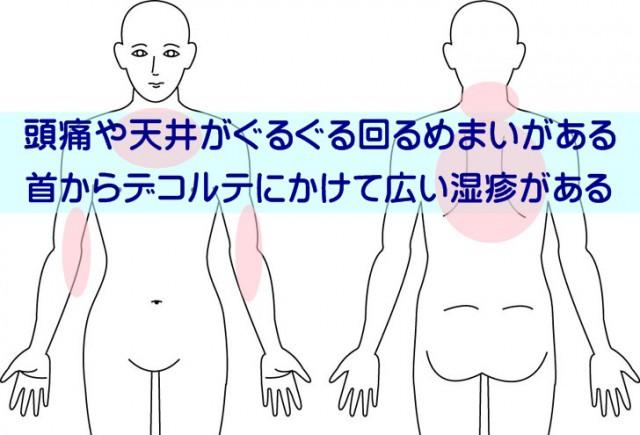 首からデコルテにかけて広い湿疹がある