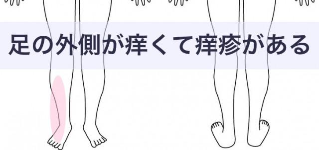 足の外側がかゆい痒疹