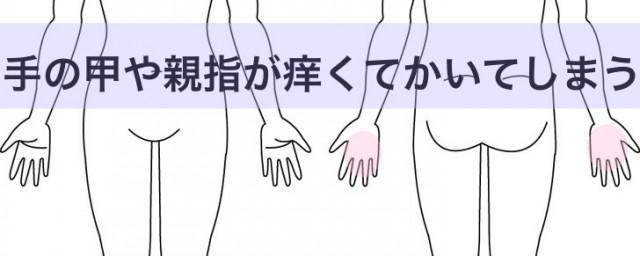 仕事中に手の甲や親指が痒くてかいてしまう