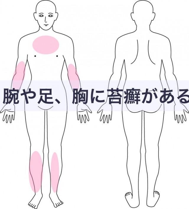腕や足、胸に苔癬がある
