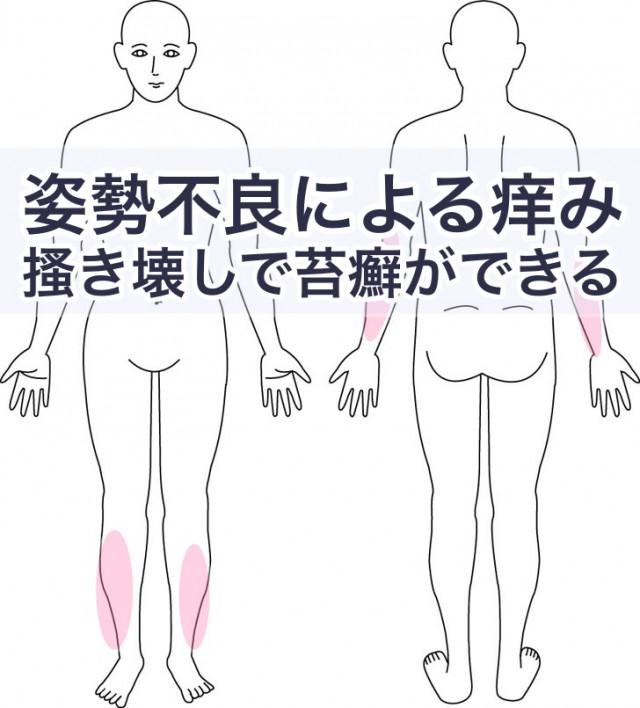 姿勢不良による痒みで苔癬ができる