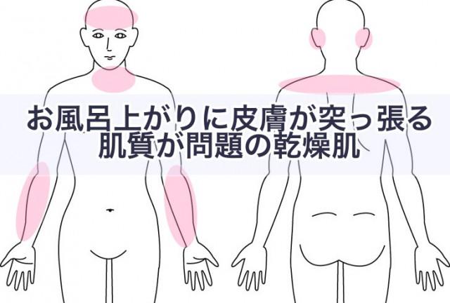 お風呂上がりに皮膚が突っ張る