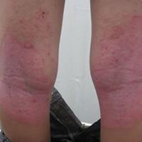 整体で良くなる膝の湿疹
