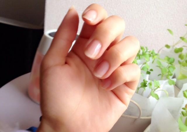 手指のひび割れをよくする方法