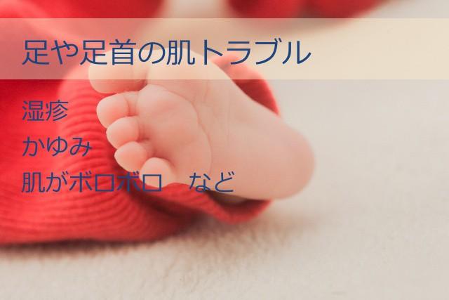 足や足首の肌トラブル