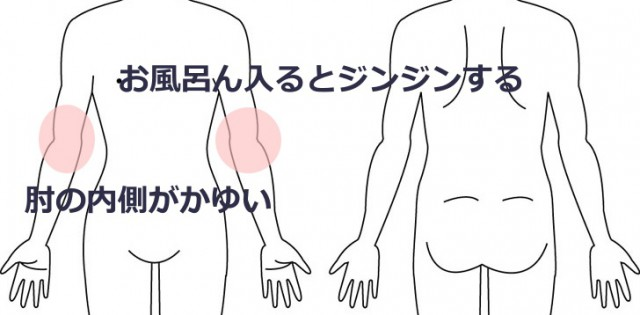 お風呂に入ると肘がジンジンかゆい