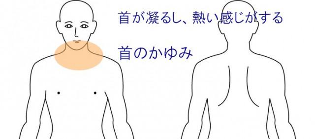 首の熱のこもりとかゆみ