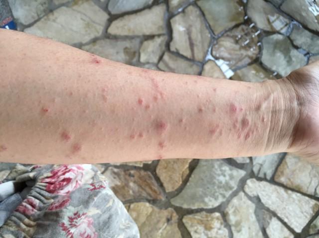 腕の蕁麻疹のような症状