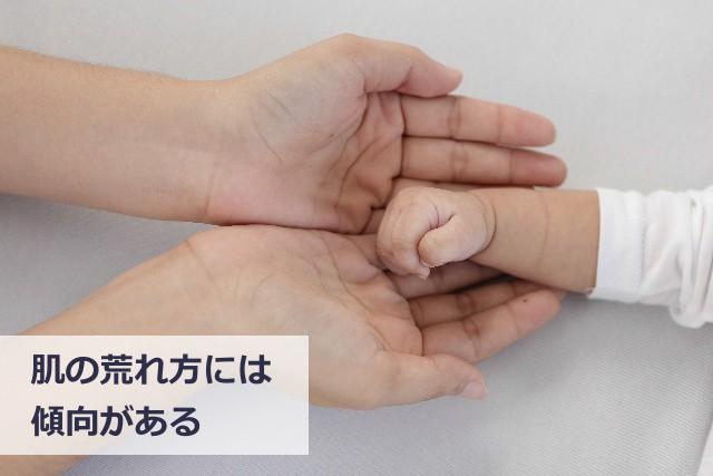 子供の肌荒れの傾向