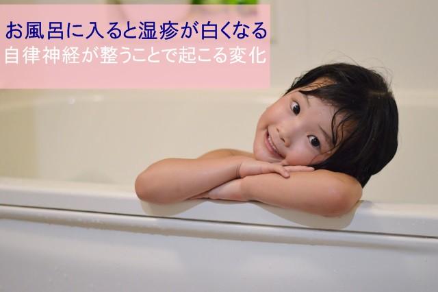 お風呂に入ると湿疹が白くなる