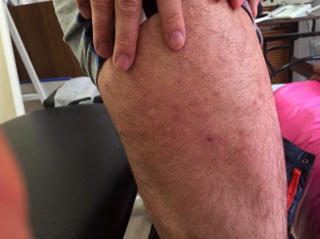 整体で良くなる足の湿疹