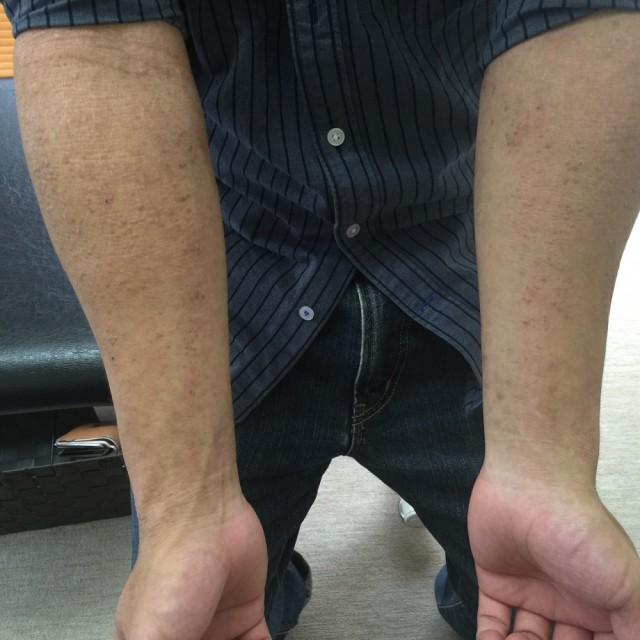 アミロイド苔癬の腕