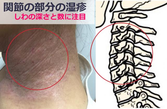 関節の湿疹の原因