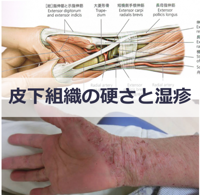 皮下組織の硬さと湿疹