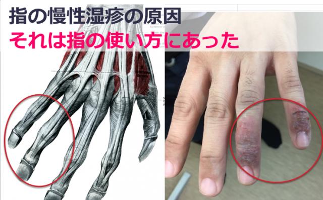 指の関節がかゆい