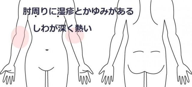 肘の湿疹とアトピーもどき