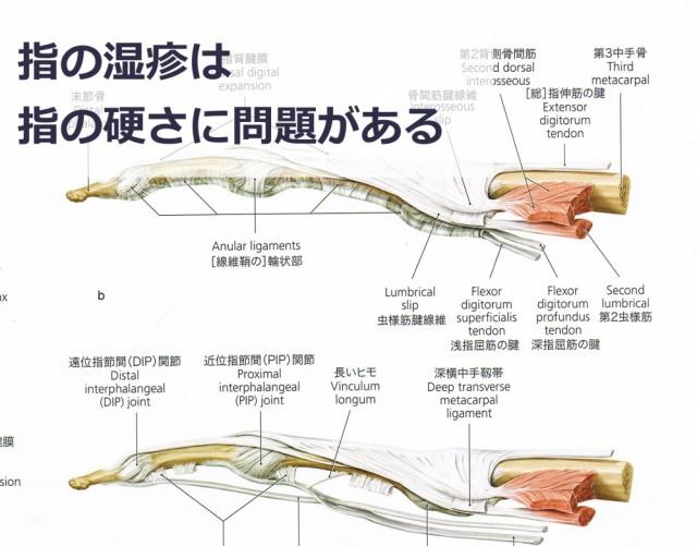 指の湿疹は関節の硬さが原因