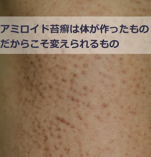 アミロイド苔癬の治療