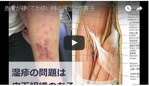 湿疹の問題
