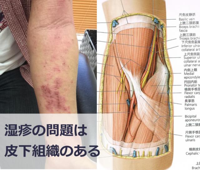 腕の湿疹の原因