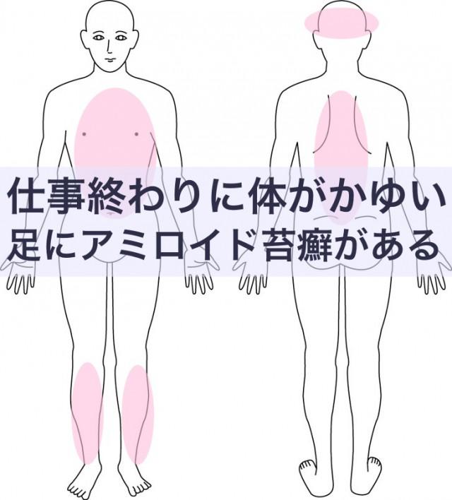 足のアミロイド苔癬
