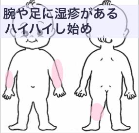 9ヶ月の湿疹
