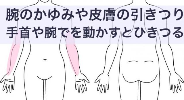 腕のかゆみや引きつり