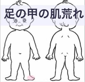 足の甲の肌荒れ