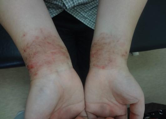 アレルゲンによる湿疹