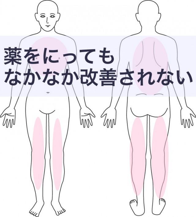 カポジ水頭症とアトピー